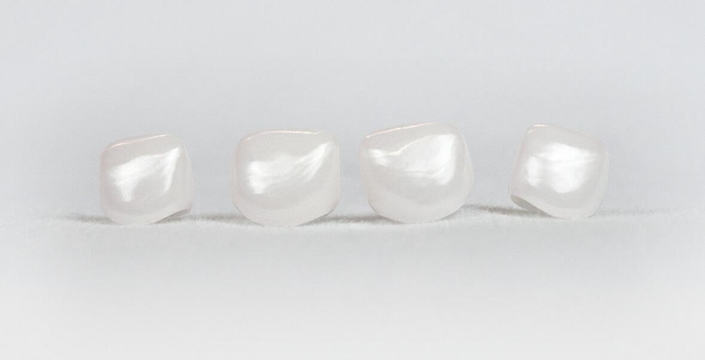 Pediatric Zirconia Crowns   Cheng Crowns